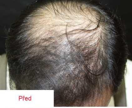 Vlasová mezoterapie 2