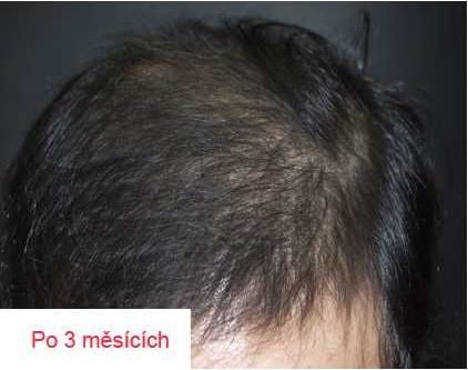 Vlasová mezoterapie 3